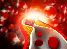 16 Natural Cholesterol Lowering Foods & Supplements