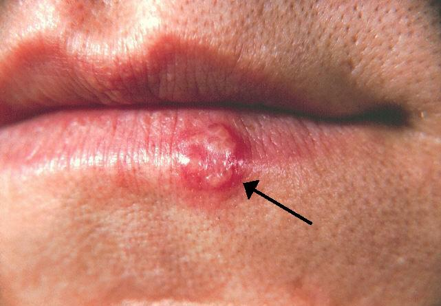 lysine for cold sores